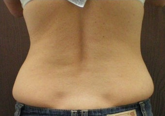 Lipo for Back and Love Handles before 374881