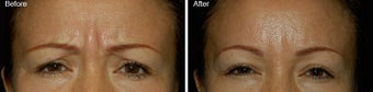Botox for brow lines before 97874