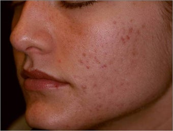 Fraxel - Acne Scarring before 652393