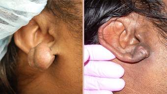 Earlobe Repair before 293449