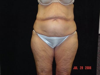 Body Lift with Liposuction of Abdomen, Waist, and Flanks before 203457