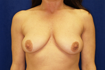 Breast augmentation with breast lift before 391344