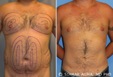Male Breast Reduction before 217797