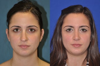 Rhinoplasty before 256037