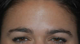 Botox to Treat Frown Lines and Vertical Lines Between Eyebrows after 53758