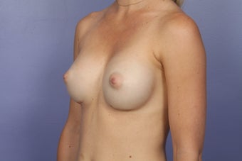 Breast Augmentation after 467312