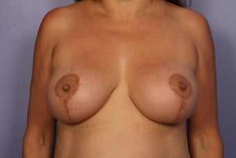 Breast Lift / Breast Augmentation after 291144