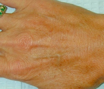 Sclerotherapy treatment for hand after 371748
