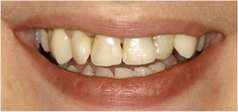 8 Veneers to a more confident smile before 113952