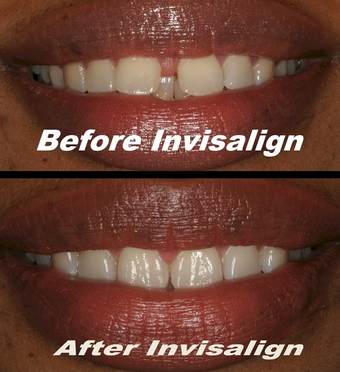 Invisalign before 75406