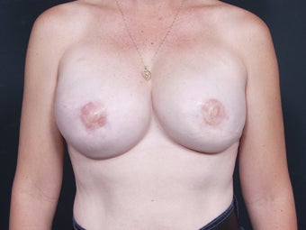 42 Year Old Female for Breast Reconstruction after 643238