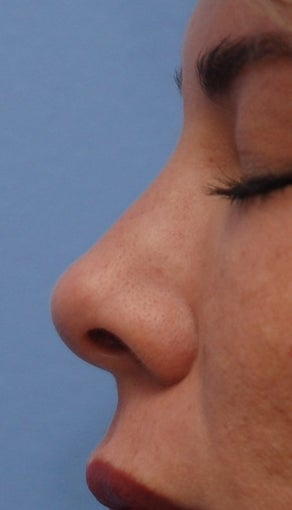 Non-Surgical Rhinoplasty after 182604