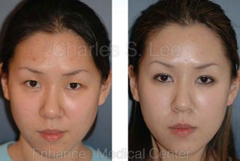 Blepharoplasty before 427506