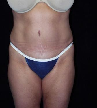 Tummy Tuck with muscle repair after 392082