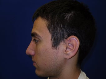 Rhinoplasty after 214624