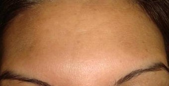 botox injections after 263054