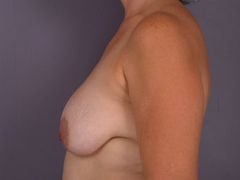 Breast lift and Implants before 306370