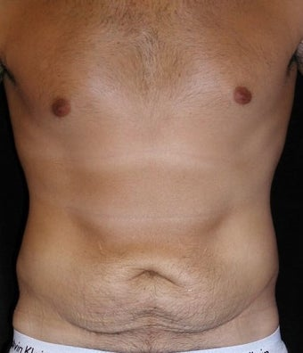 Male tummy Tuck, Flank Liposuction before 578169