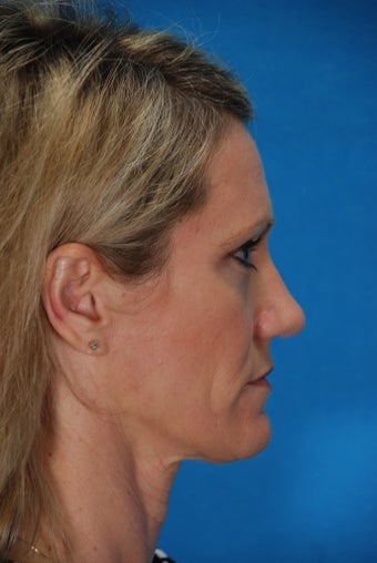Revision rhinoplasty after 198133
