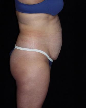 Tummy Tuck with muscle repair 392082