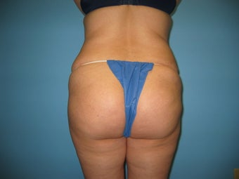 buttock augmentation (Brazilian buttock lift) after 284917