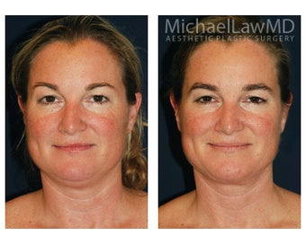 Chin Liposuction before 395803