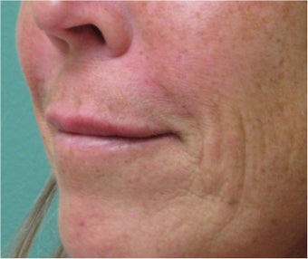 Juvederm to Upper Lip after 77462