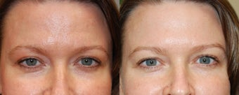 Non-Surgical Facial Rejuvenation with BOTOX Cosmetic and Silikon-1000 before 128807