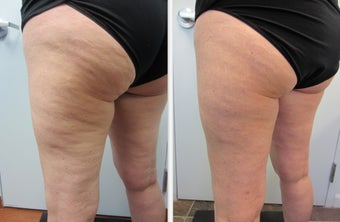 Cellulaze Laser Cellulite Reduction before 596652