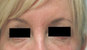 Bags under eyes before and after pictures Juvederm before 204772