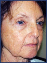 CO2 laser skin resurfacing before 87080