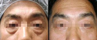 Lower Eyelid(Blepharoplasty) Surgery before 650493