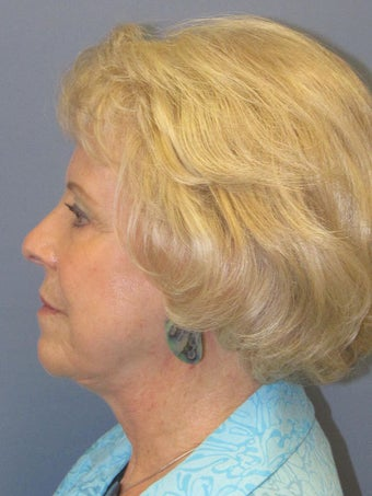 Neck Lift, Platysmaplasty 634752