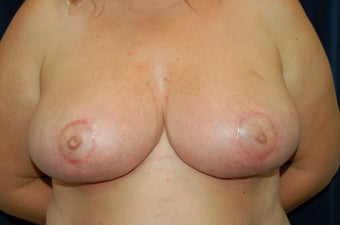 Bi-lateral Breast Reduction after 281766