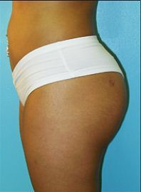 Butt Lift- Butt Augmentation after 440866