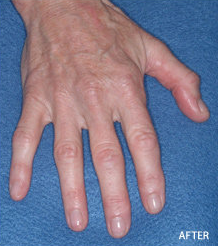 Radiesse Filler Augmentation of the Hands after 328103