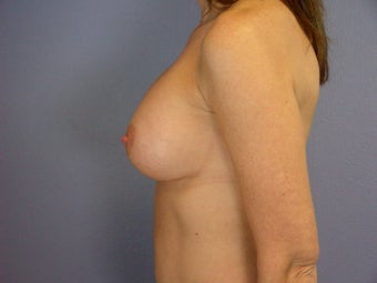 Breast Implants  after 305414