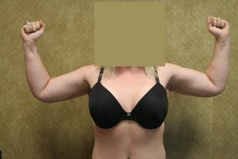 Brachioplasty or arm tuck  after 583681