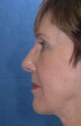 Neck Lift after 324029