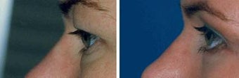 Blepharoplasty before 643244