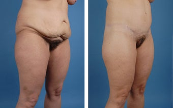 Lower Body Lift and Liposuction of Lateral Thighs 303681