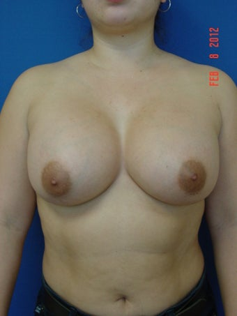 Breast Augmentation after 509086