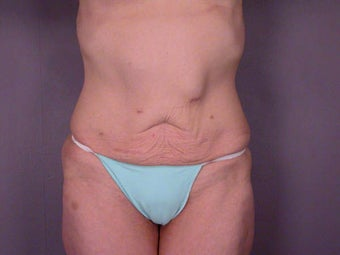 Tummy Tuck before 280113