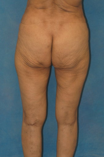 Women's Buttocks Augmentation  518128