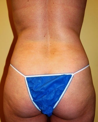 Body Jet (water assisted) liposuction before 235768