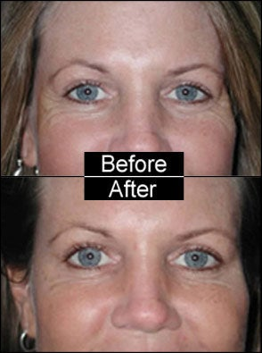 Botox for Crows Feet and Laugh Lines before 97311