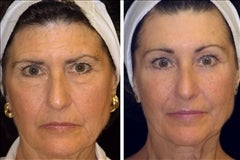 64 year old female, brow lift before 629896