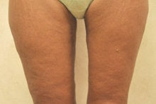 Medial (Inner) Thigh Lift after 341015