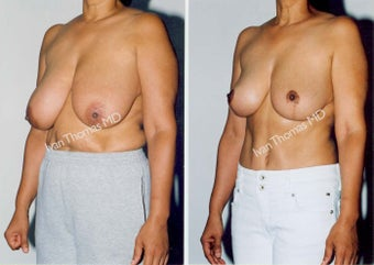 Tummy Tuck and Breast Reduction before 247328
