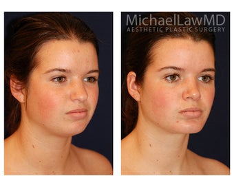 Chin Liposuction after 395814
